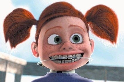 18-faces-everyone-whose-had-braces-will-immediate-2-5533-1415304357-0_dblbig